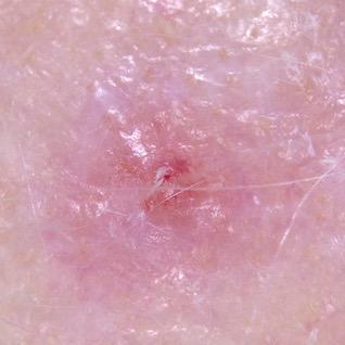 A nodular melanoma developing within an amelanotic melanoma in situ on the scalp.